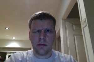 Day 6 Bells Palsy Pictures Frowning Face