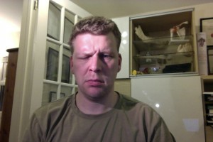 bells palsy  Day 15 frown