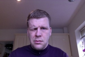 Trying to frown with Bells Palsy - Day 4