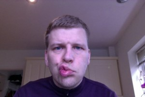 Trying to blow a kiss on day 4 with Bells Palsy