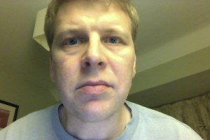 Bells palsy day 140 neutral
